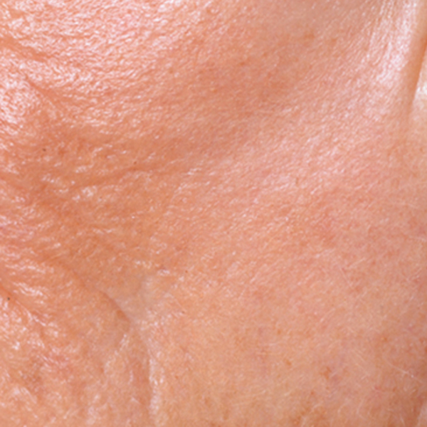 SKIN WITH LOSS OF ELASTICITY
